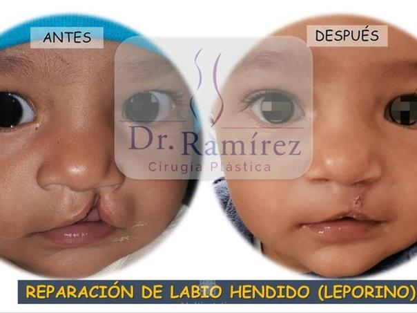 Antes y después labio leporino