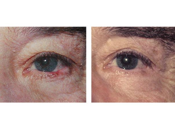 ¿Cuáles son los beneficios de estos tratamientos?
