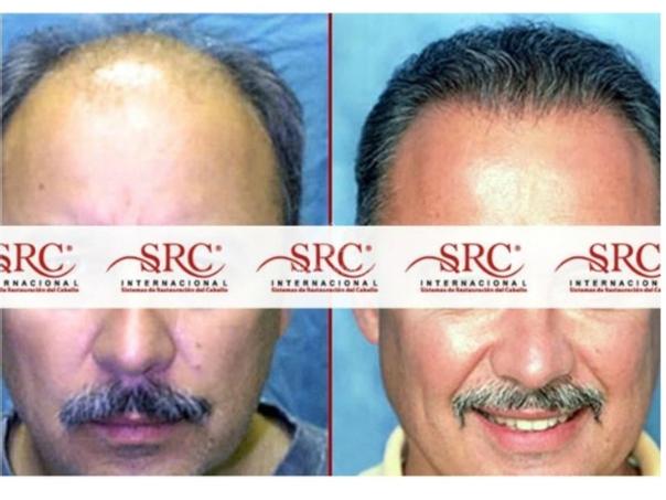 Postoperatorio trasplante de cabello