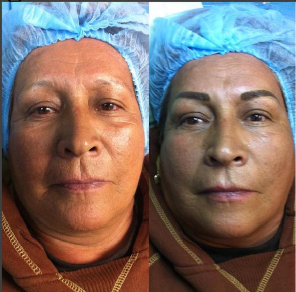 antes y después e micropigmentación