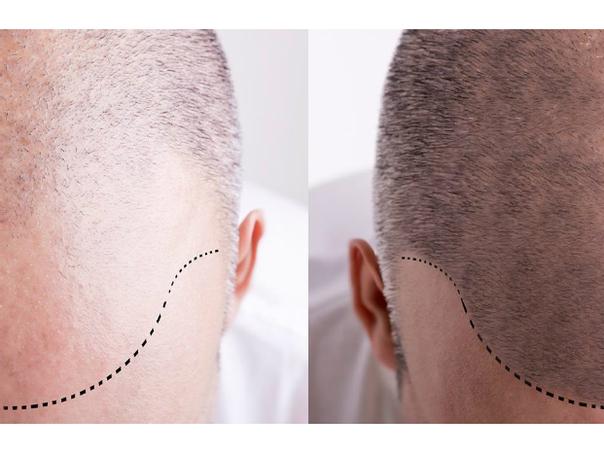 Antes y después de trasplante capilar.