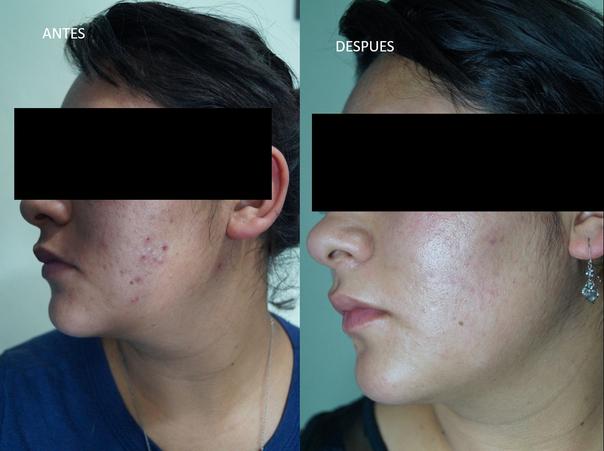Antes y después del tratamiento de acné