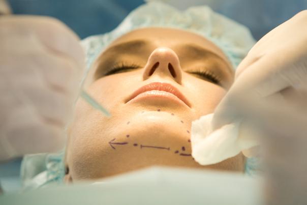 paciente mentoplastia