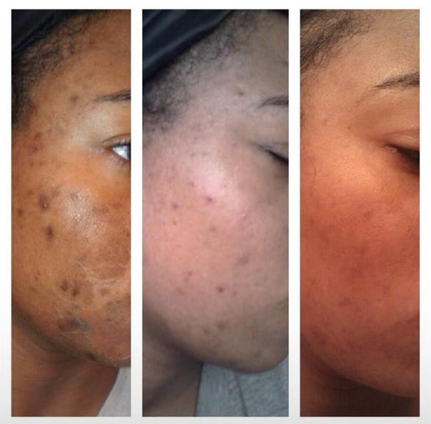 Antes y después de tratamiento de acne