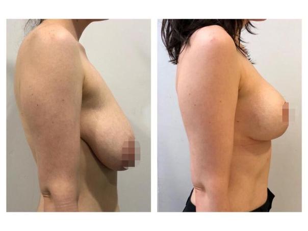 antes y después de mastopexia