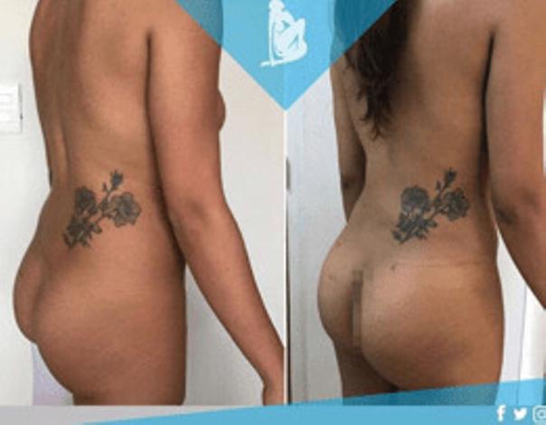 Cicatrización después de la liposucción