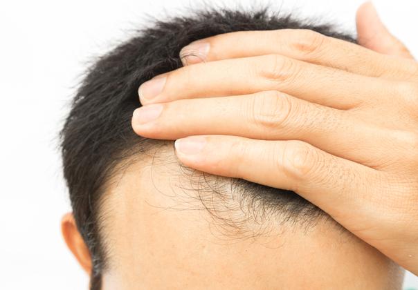 Causas de la alopecia