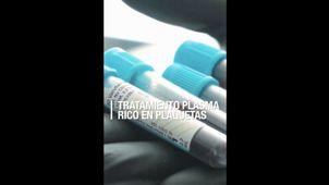 Usos de el Plasma Rico en Plaquetas