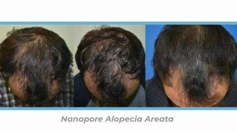 Nanopore capilar - Grupo Médico LIFE