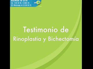 Testimonio antes y después Rinoplastia y Bolsas de Bichat