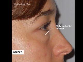 Blefaroplastia - Dr. Yusef Jiménez Murat