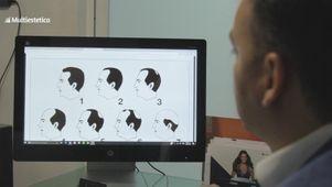 Información sobre la alopecia