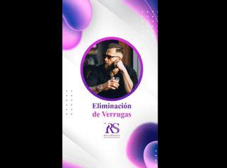 Eliminación de verrugas - Unidad de Medicina Estética de Querétaro