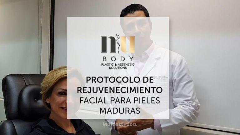 1ra Parte RELLENO NASOYUGAL - Rejuvenecimiento Facial no Quirúrgico
