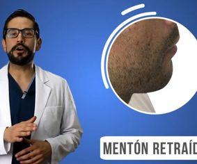 ¿Qué debes conocer sobre el relleno de mentón con ácido hialurónico? - Dr. Juan Pablo Espinosa