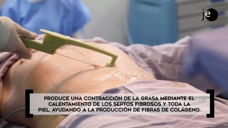 Dr Echeagaray - BodyTite - evolución de la liposucción tradicional