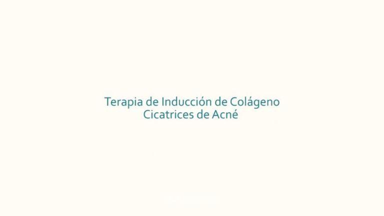 Terapia de Inducción De Colágeno para Cicatrices de Acné
