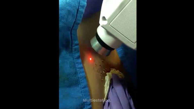 Eliminación de veruugas