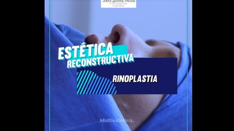 Dr. Jhon Gómez Cirujano Plástico - Rinoplastia