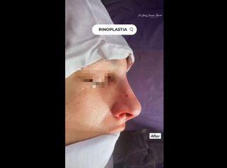 Rinoplastia - Dr. Yusef Jiménez Murat