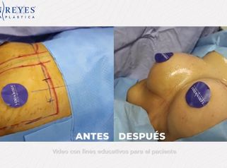 Aumento de busto - Dr. Lenin Alfonso Reyes Ibarra