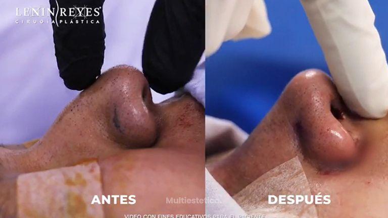 Rinoplastia - Dr. Lenin Alfonso Reyes Ibarra