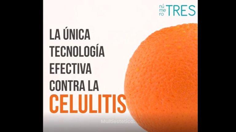 Tratamientos Anticelulíticos