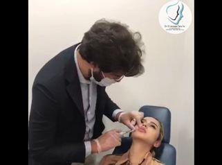 Aumento de labios - Dr. Giuseppe Tanzillo Greco
