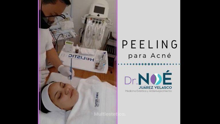 Peeling para acné - Dr. Rafael Noé Juarez Velasco