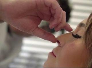 Rinoplastia - Facial Clinic - Dr. Irvin Garduño