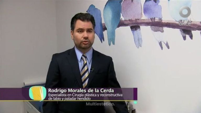 Entrevista de Canal 11 sobre labio y paladar hendido