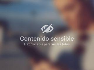 Aumento de busto - Unidad de Medicina Estética de Querétaro