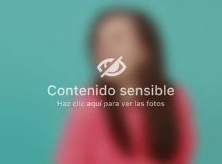 Hilos tensores faciales - Unidad de Medicina Estética de Querétaro