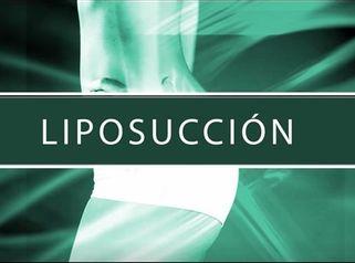 Dr. Sergio Quiroz Zarate - Liposucción