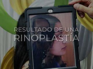 Rinoplastia - Dr. Rafael Barrera Vazquez