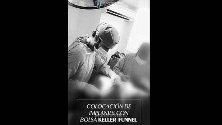 Aumento de busto - Dr. Giuseppe Tanzillo Greco