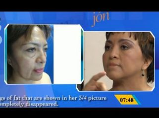 Facial rejuvenation through minimal incisions.