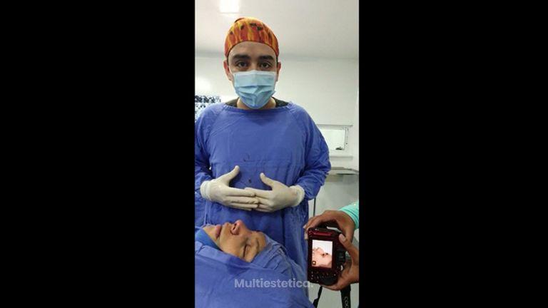 Rinoplastia - Dr. Daniel Ponce Franco