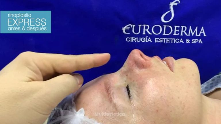 Rinoplastia - Euroderma