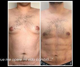 Liposucción HD Y Ginecomastia