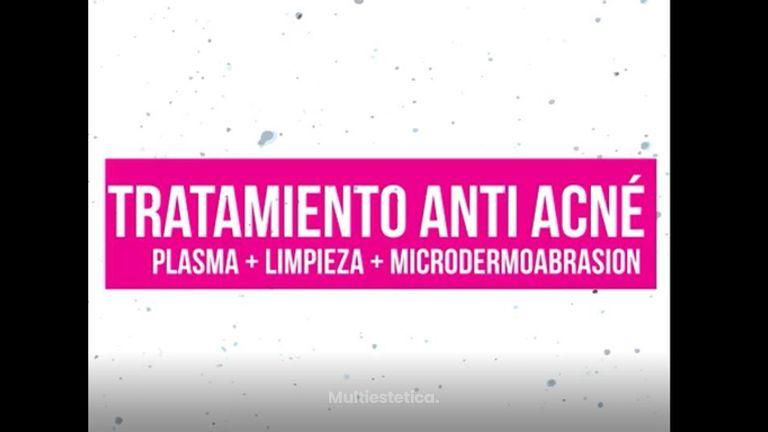 Tratamiento Anti-Acne