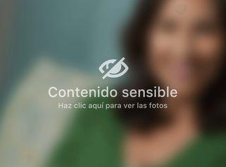 Bótox - Unidad de Medicina Estética de Querétaro